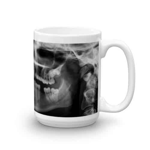X-Ray Mug-right (15 oz)